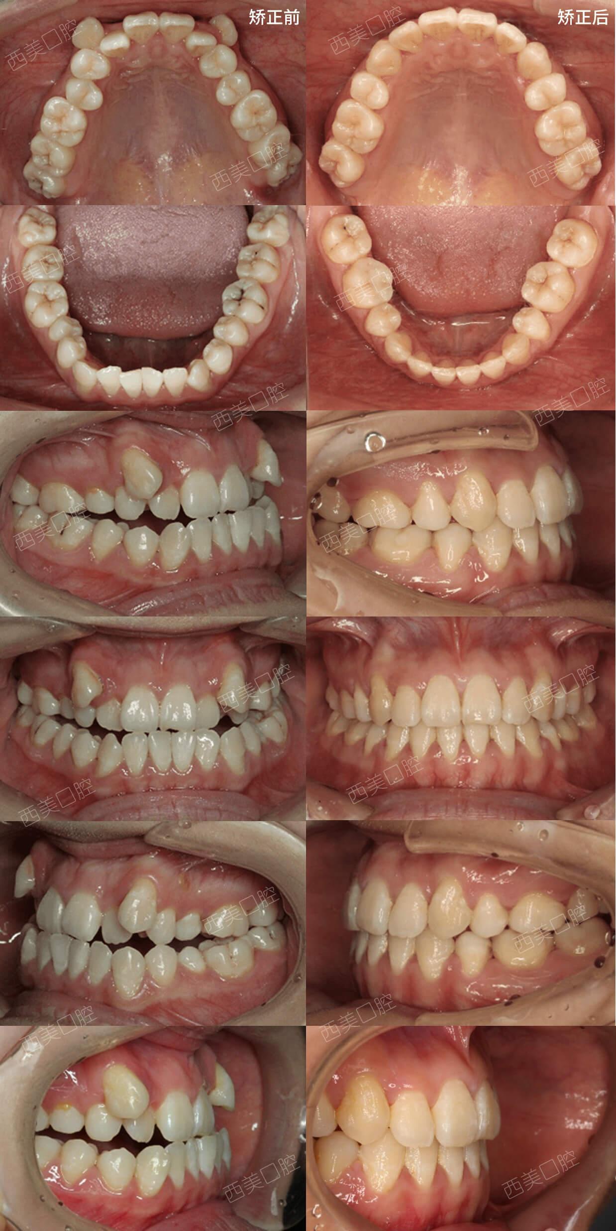 拥挤,地包天,高位虎牙,牙齿矫正塑造温柔侧颜!图片