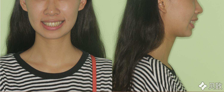 嘴巴前凸人的侧脸图片 不手术怎么改善嘴凸